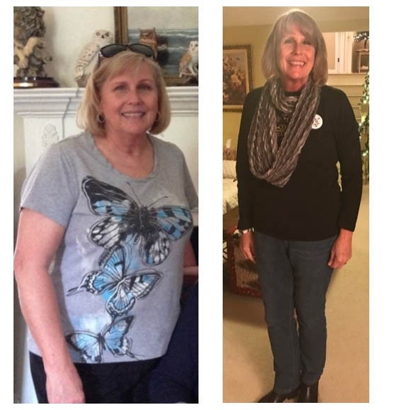 Lynn-otis-before-after